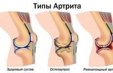 Схуднення за допомогою вправ не захистить колінний суглоб
