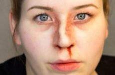 Перелом носа: симптоми і ознаки, лікування і репозиція кісток, реабілітація