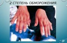 Обмороження 2 ступеня: характерні ознаки, причини виникнення, перша допомога, лікування та профілактика