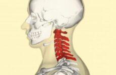Перша допомога при переломі шийного відділу хребта: анатомічні особливості пошкодження, вимоги транспортування та первинного лікування, можливі наслідки та реабілітація