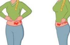Лікування оперізувального лишаю в домашніх умовах: як і чим лікувати народними засобами