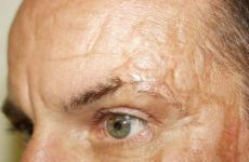 Які засоби допоможуть позбутися від шрамів після опіків