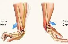 Перелом променево-зап'ясткового суглоба (зап'ястя руки): лікування та відновлення після травми