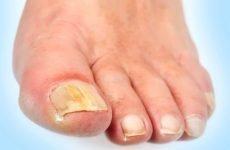 Як лікувати грибок на великому пальці ноги