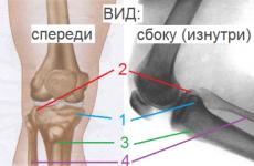 Все про перелом внутрішнього виростка великогомілкової кістки
