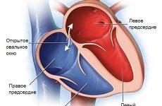 Відкрите овальне вікно в серці у дітей і дорослих: патологія і норма