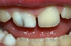 Як відбуваються вивихи і переломи зубів, яке лікування призначається при цих травмах