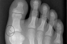Як відрізнити забій пальця від перелому: спільні та відмінні характеристики, особливості діагностики та першої медичної допомоги