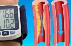 При якому артеріальний тиск може бути інсульт?