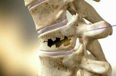 Як проходить лікування компресійного перелому хребта