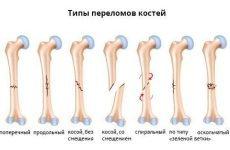 Види переломів: класифікація, клінічна картина, можливі ускладнення