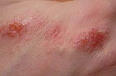 Лікування, симптоми контактного дерматиту у дорослих, дітей, немовлят на обличчі