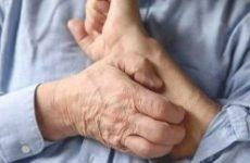 Суха екзема на руках і ногах: причини і лікування. Як і чим лікувати суху екзему