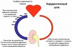Причини, симптоми та екстрена допомога при кардіогенному шоці