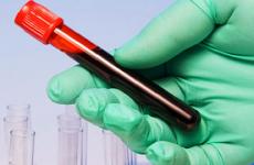 Що таке означають ліпіди в крові?