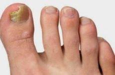 Грибок нігтя на великому пальці ноги: лікування, видалення і симптоми