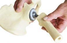 Протезування при переломі шийки стегна: особливості процедури, види операцій і терміни реабілітації