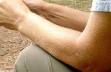 Переохолодження організму: симптоми і ознаки гіпотермії організму частинами тіла різного ступеня тяжкості