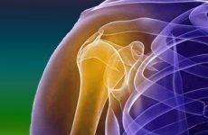 З якою метою проводиться накладання шини при переломі плеча