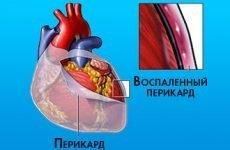 Симптоми і лікування рідини в серці