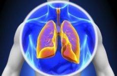 Двостороння пневмонія у дорослих: симптоми, лікування та тривалість