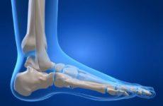 Стопа людини: будова і позначення кісток і зв'язок ноги, захворювання