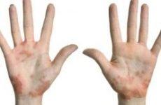 Пустульозний (ексудативний) псоріаз: причини і лікування. Розповсюджений, генерализованный, псоріаз Барбера, Цумбуша