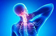 Лікувальна гімнастика, фізкультура при остеохондрозі шийного відділу хребта