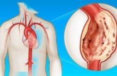 Аневризма серця і розширення його шлуночків – причини і лікування