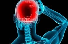 Причини розвитку та ознаки підвищеного тиску при синдромі внутрішньочерепної гіпертензії