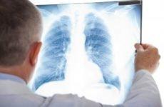 Може бути запалення легень без температури і кашлю: як розпізнати?