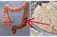 Захворювання товстої кишки: симптоми і лікування хвороб кишечника