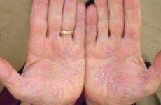 Долонно-підошовний псоріаз: причини і лікування