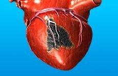 Дієта і харчування після інфаркту міокарда для чоловіків і жінок