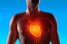 Легеневе серце – симптоми та діагностика, лікування та прогноз