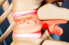 Як походить лікування компресійного перелому грудного відділу хребта