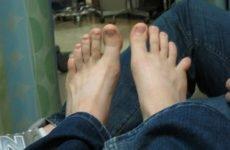 Лікування перелому мізинця на нозі – симптоматика, скільки гоїться, варіанти ефективного лікування і правильної реабілітації