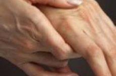 Симптоми і лікування тромбу в руці
