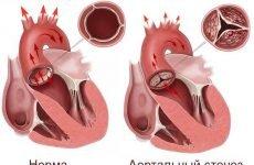 Симптоми, діагностика та лікування аортального стенозу