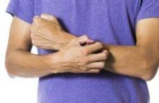 Нервова екзема на руках (психосоматика): причини, симптоми і лікування