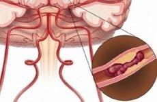Як розпізнати розвиток мікроінсульту, його симптоми, ознаки та діагностика