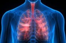 Причини розвитку і способи лікування легеневої гіпертензії