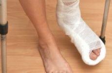 Переломи кісток стопи і рекомендації пацієнтам після перелому стопи