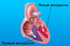 Все про інфаркті правого шлуночка