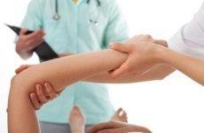 Перелом ліктьової кістки: класифікація, ознаки, перша допомога та загальна схема лікування
