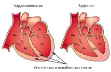 Що таке ішемічна кардіоміопатія та її причини?