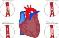 Тупий ниючий біль в області серця: дискомфорт і тяжкість в грудній клітці