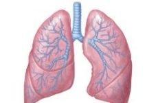 Екзема легень: причини, симптоми і лікування