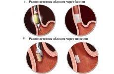 Радіочастотна абляція (РЧА) при миготливої аритмії: лікування та відгуки пацієнтів