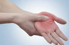 Перша допомога при переломі кисті. Як не нашкодити потерпілому?